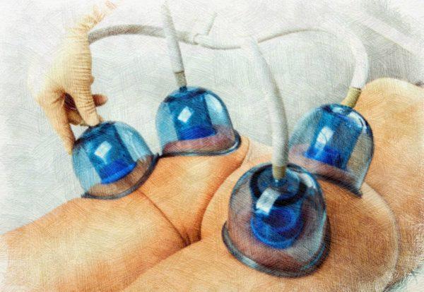 массаж от целлюлита